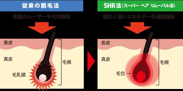 SHR画像